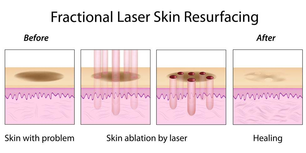 Did you know beauty skin resurfacing fractional laser