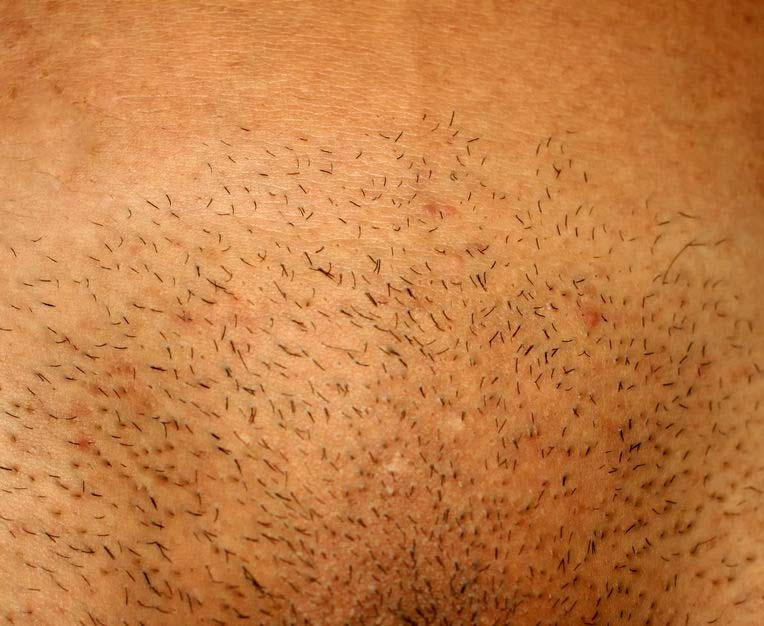 Did you know pubic hair removal and STDs