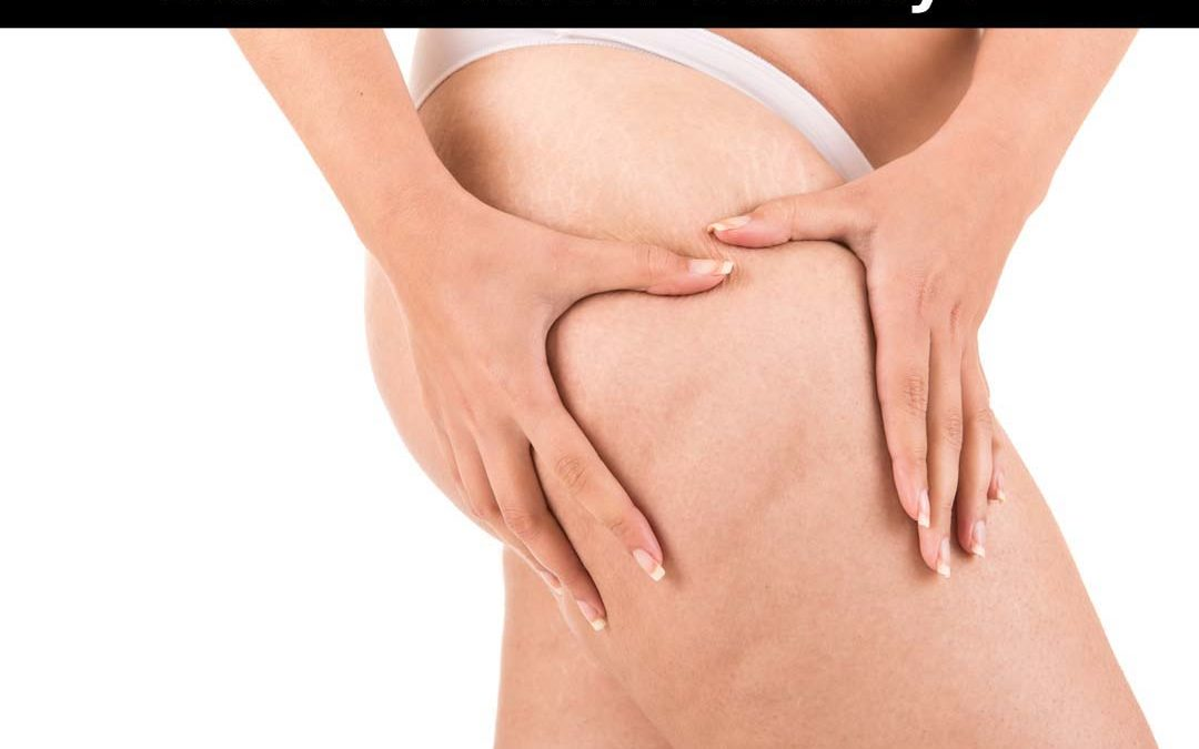Did you know beauty Cellulite