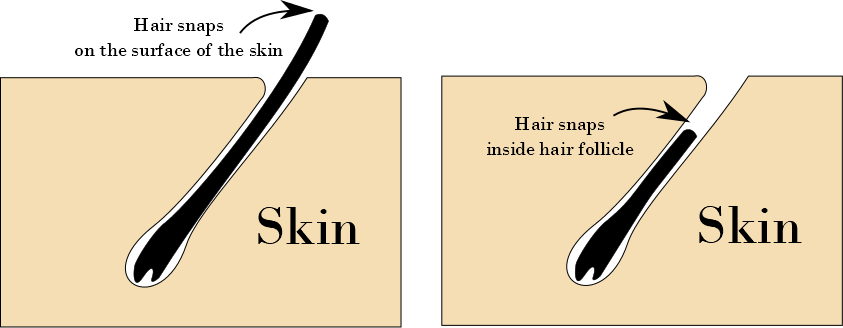 Did you know beauty waxing hair removal snapping, broken hair